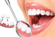 Đi du học nghề làm răng giả tại Hàn Quốc