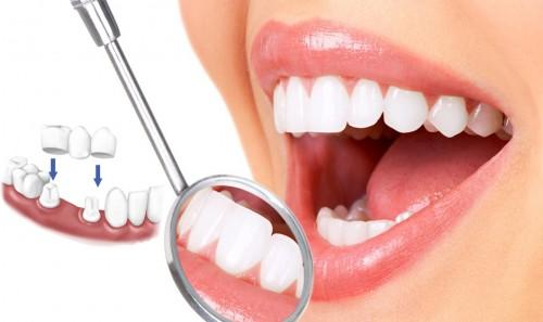 Kết quả hình ảnh cho răng